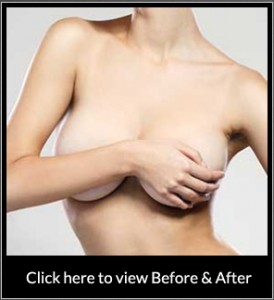 capsular contracture beverly hills