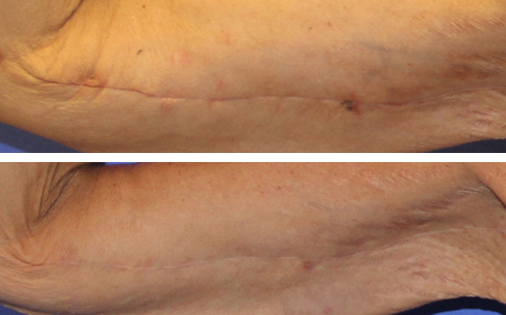 Scar Revision Beverly Hills Scar Revision Los Angeles Drs Layke And Danielpour
