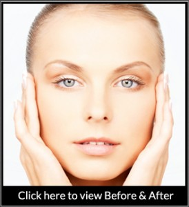 Brow Lift Before After Gallery