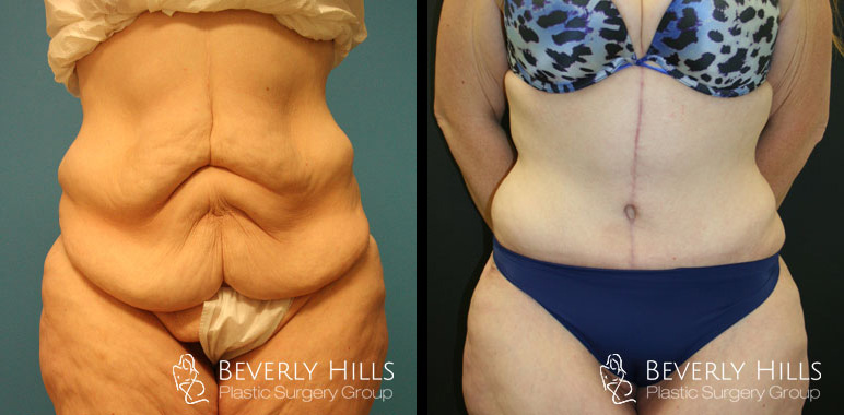 Body Contouring Beverly Hills Plastic Surgery Group