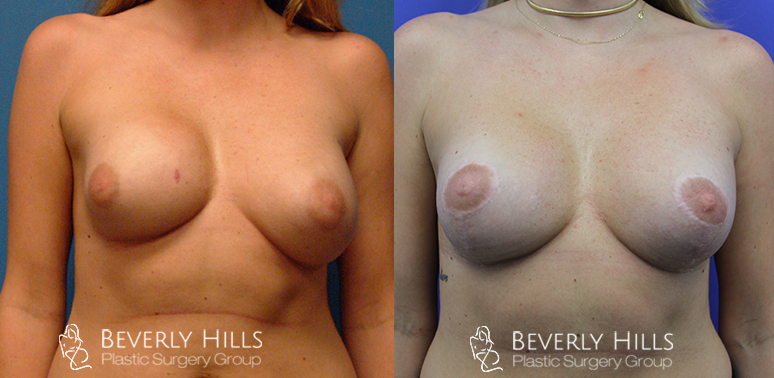 beverly hills capsular contracture