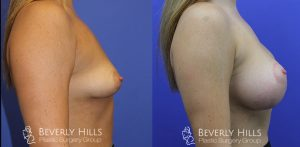 Tuberous Breast Correction Right 7-1
