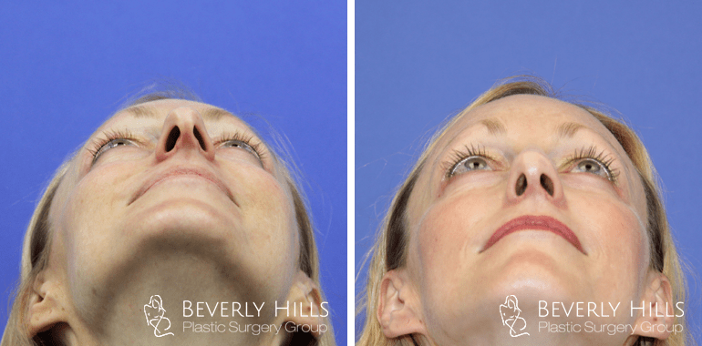 Female Rhinoplasty Before and After Up Case 19